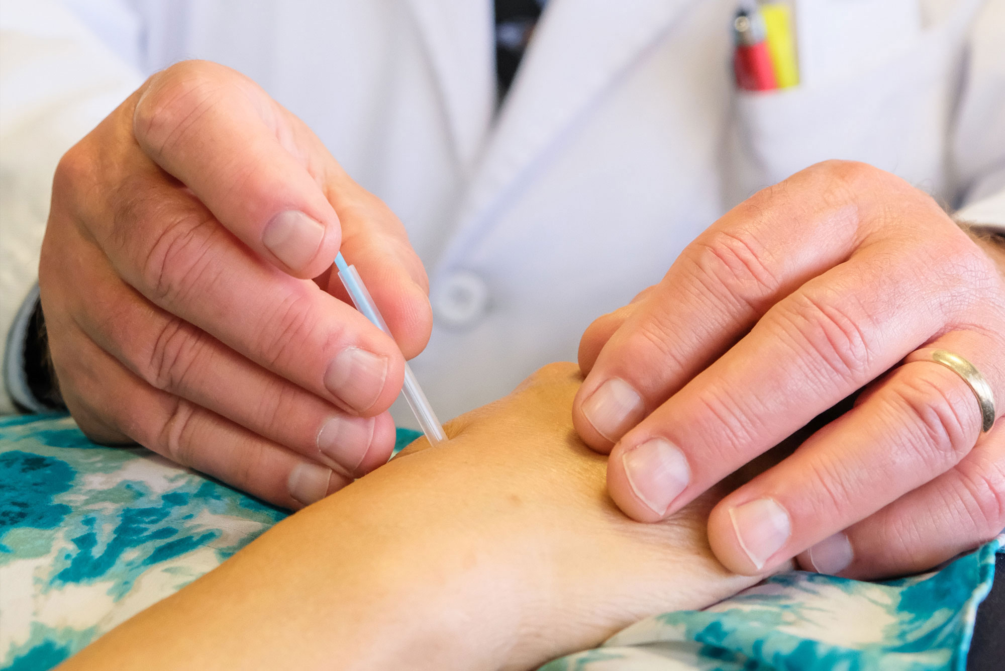 What to Expect from an Acupuncture Treatment